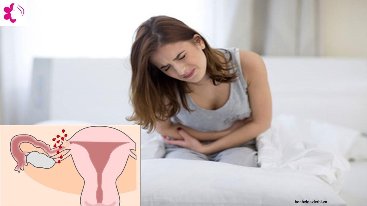 Dấu hiệu đau bụng kinh trong tắc vòi trứng